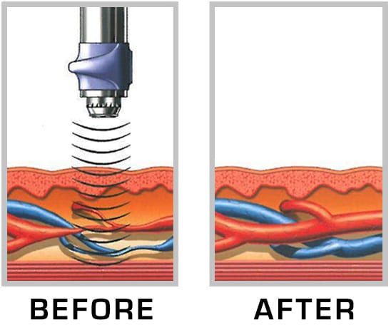 An image of Gainswave treatment in Dallas, TX